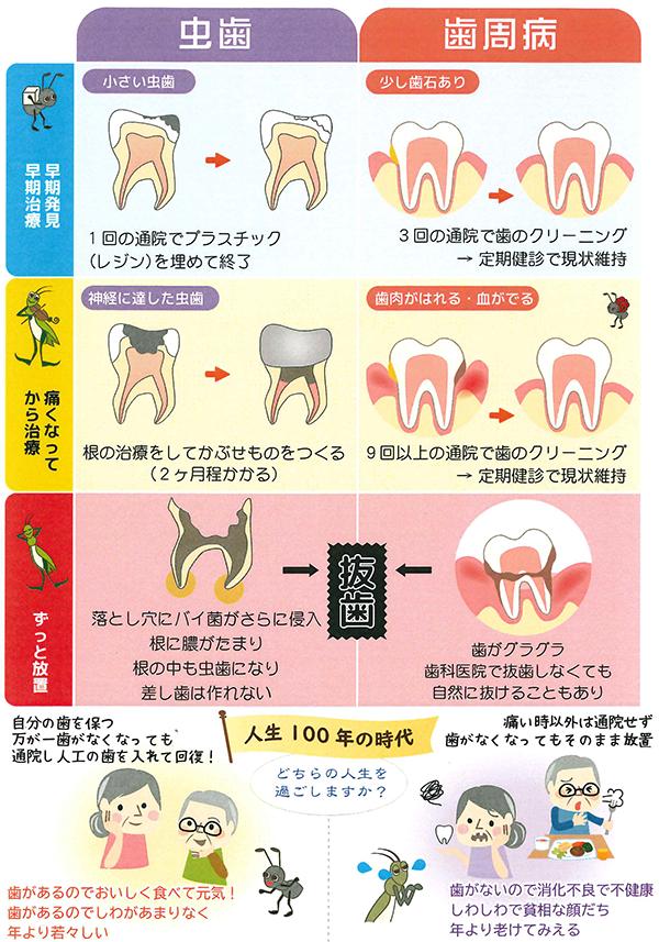 虫歯と歯周病