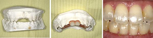 私(院長)の歯のざんねんな話